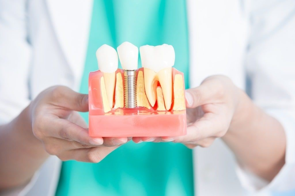 Dental Implants In New Westminster