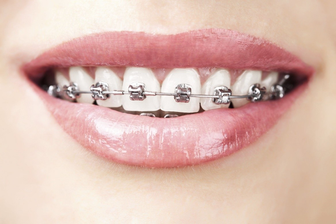 Orthodontic New Westminster